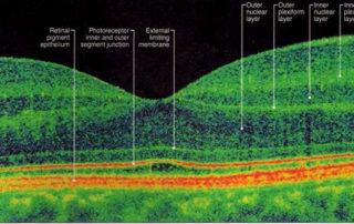 capas-retina