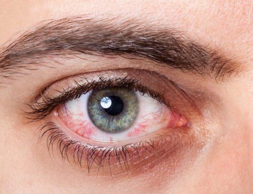 14 cosas que dañan tus ojos