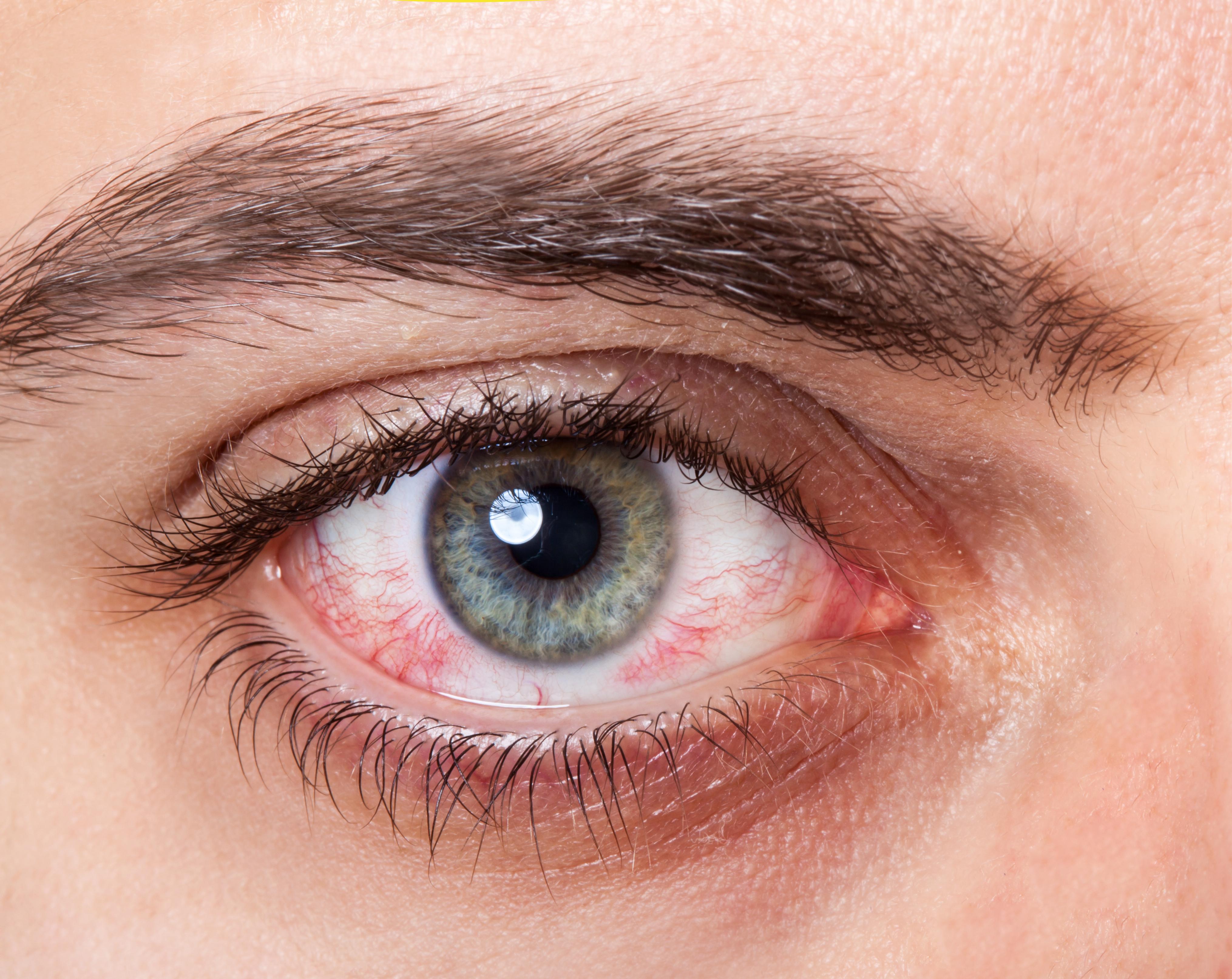 ¿Por qué la diabetes causa ojos rojos?