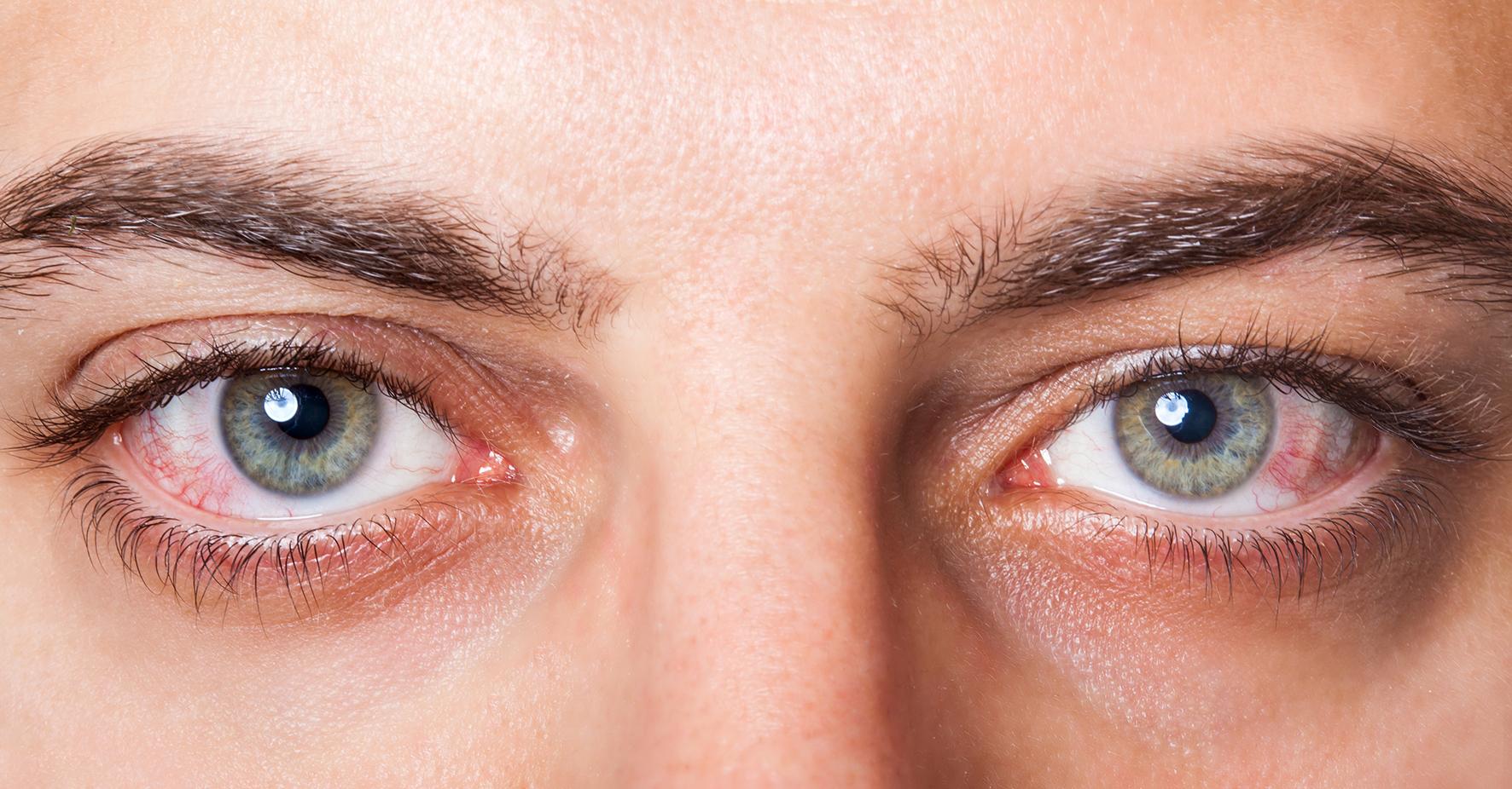 ¿Pueden los antibióticos orales tratar las infecciones oculares?